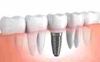 Dental Restorations (Fillings)